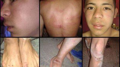 """El Sindicato de Prensa Bonaerense repudió la tortura policial a chicos de la """"La Garganta Poderosa"""""""